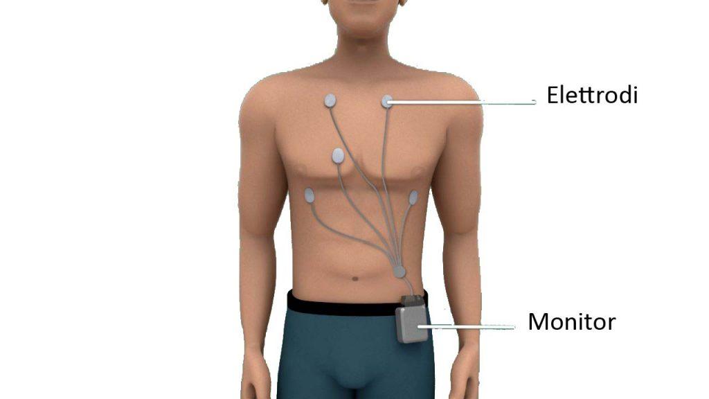 costo-holter-cardiaco
