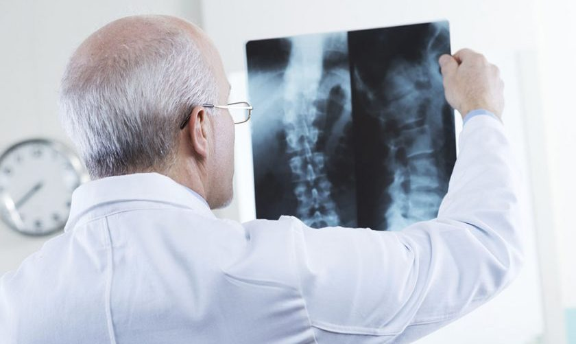Quanto costa una radiografia in privato?